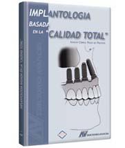Implantología Basada en la Calidad Total